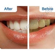 Отбеливающие полоски для зубов CREST WHITESTRIPS 3D